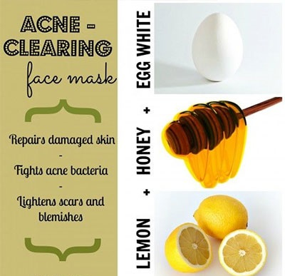 acne clearing face mask recipe natural cute