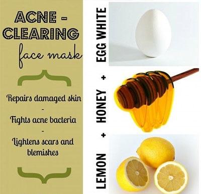 acne clearing face mask recipe natural cute