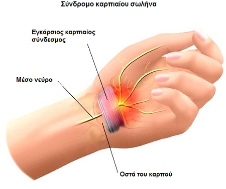 Carpal Tunnel Syndrome 3
