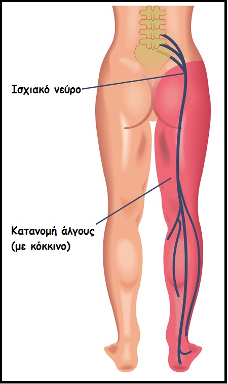 Sciatica Illustration 3
