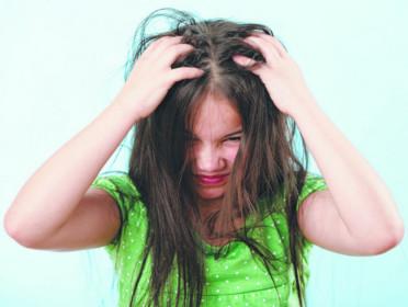 head lice1