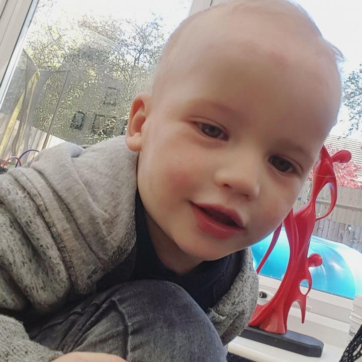 eczema child 20160704153629.jpg q75dx720y u0r1g0c