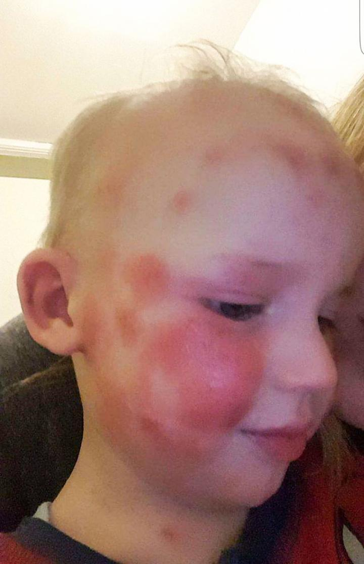 eczema child 20160704153921.jpg q75dx720y u0r1g0c