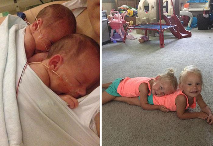 identical twins born holding hands jenna jillian sarah thistlethwaite 17