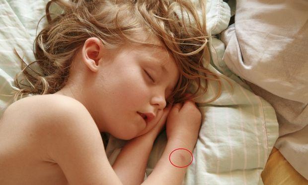 Πώς να προστατέψετε το παιδί σας από τα κουνούπια