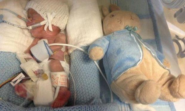 Βρέφος γεννήθηκε έπειτα από εκλαμψία και κατάφερε να επιζήσει!