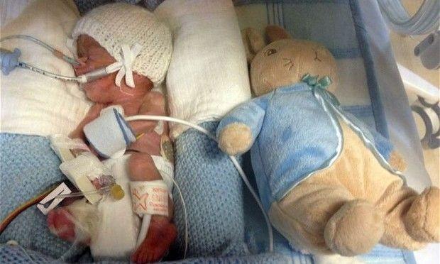 Θαύμα: Μωρό που γεννήθηκε τρεις ολόκληρους μήνες νωρίτερα, επέζησε!