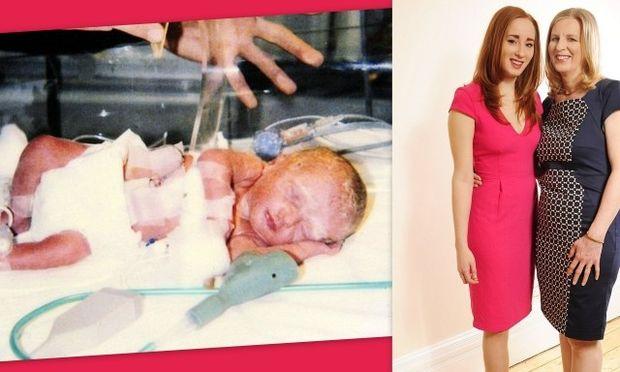 Η Rosie, ο πρόωρος ερχομός της στις 29 εβδομάδες και η αγάπη της μητέρας της που έσωσε τη ζωή της!