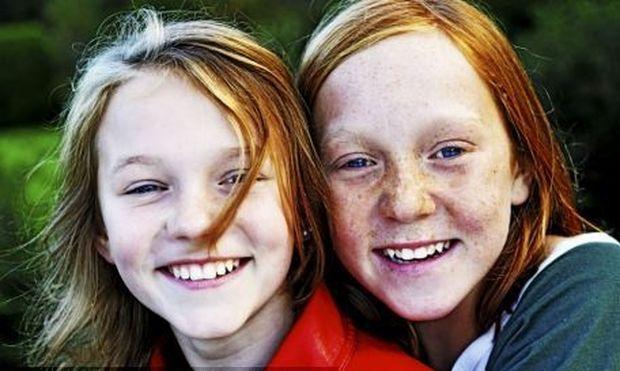 Έρευνα: Τα παιδιά με κόκκινα μαλλιά έχουν περισσότερες πιθανότητες να πάθουν καρκίνο του δέρματος ακόμα και αν δεν εκτίθενται στον ήλιο
