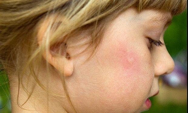 Προστατέψτε τα παιδιά από τα… κουνούπια!