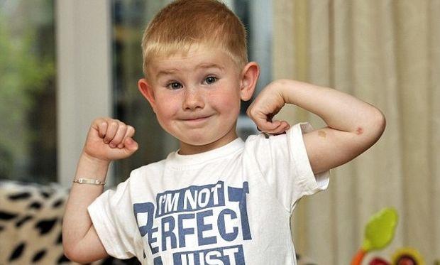 Πεντάχρονο αγόρι σώθηκε από σφοδρή σύγκρουση με αυτοκίνητο χάρη στο συνδρόμο που πάσχει!