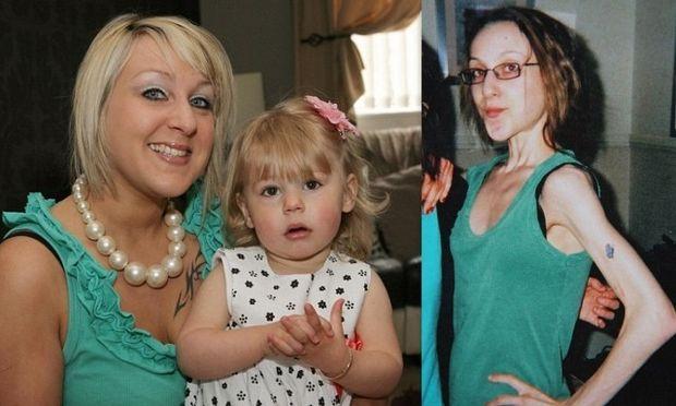 Πώς μία γυναίκα κατάφερε να γλιτώσει από τον εφιάλτη της ανορεξίας, αποκτώντας παιδί! (φωτό)