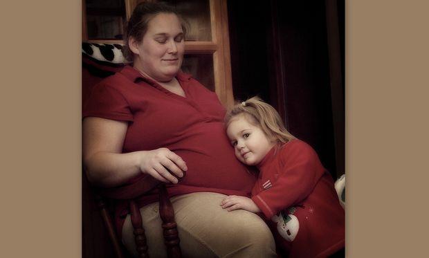 Κίνδυνος πρόωρου τοκετού σε παχύσαρκες μητέρες