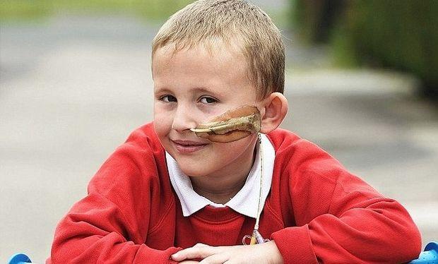 Το 6χρονο αγοράκι που είναι αλλεργικό σε όλες τις τροφές!