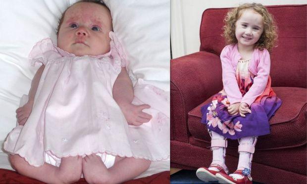5χρονο κοριτσάκι που γεννήθηκε με σοβαρό πρόβλημα στα πόδια του, κατάφερε να περπατήσει!