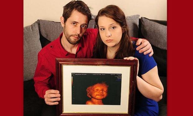 Είδε το μωρό της να χαμογελά στον υπέρηχο και δεν διέκοψε την κύηση!