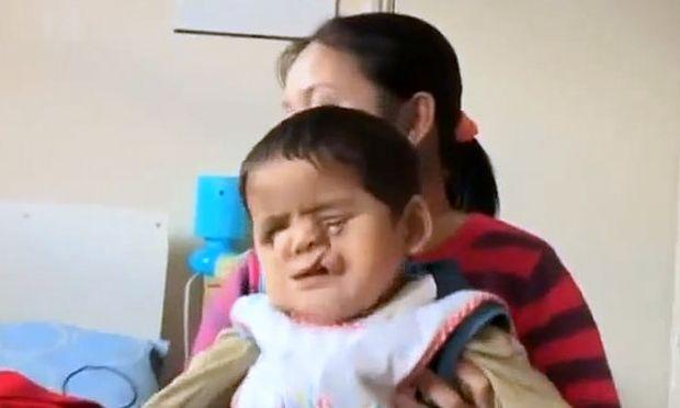 Συγκλονιστικό: Το αγοράκι που απέκτησε καινούργιο πρόσωπο! (βίντεο)