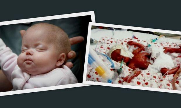 Μετά από 6 αποβολές σε 14 χρόνια, γέννησε στην 23η εβδομάδα κύησης ένα κοριτσάκι!
