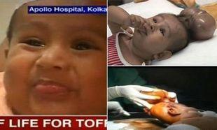 Μωρό υποβλήθηκε σε εγχείρηση για να του αφαιρεθεί το… δεύτερο κεφάλι!