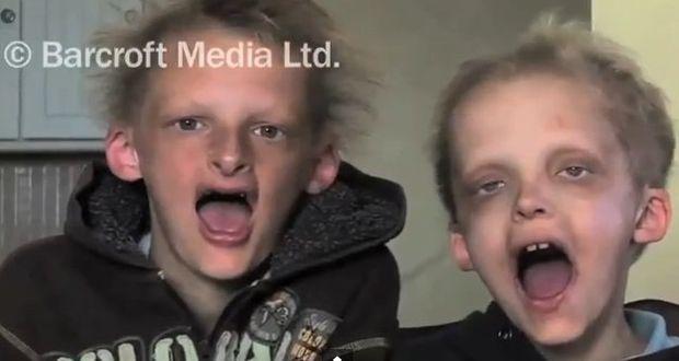 Αδέλφια πάσχουν από ασθένεια παρόμοια με τον… βαμπιρισμό! (βίντεο)