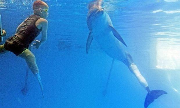Συγκλονιστικό: Παιδί με προσθετικά μέλη κολυμπά με δελφίνι με προσθετική ουρά! (εικόνες&βίντεο)