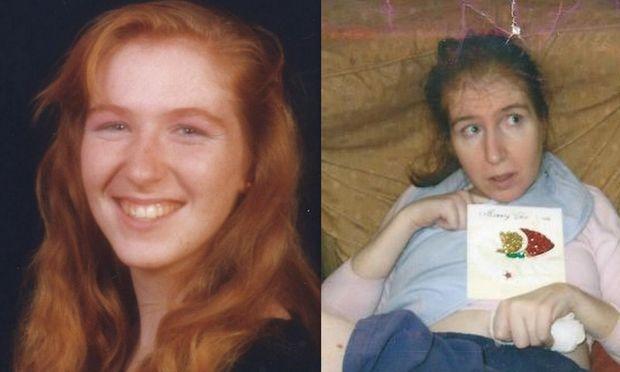 Η τραγική ιστορία μητέρας δύο παιδιών που πάσχει από άνοια από τα 27 της χρόνια!