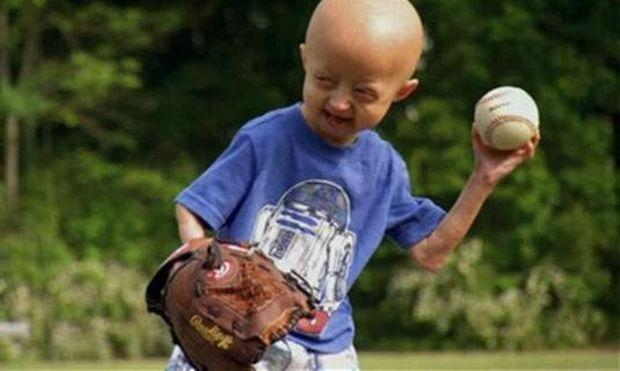 Η χαρά που δίνει το μπέιζμπολ σε ένα εφτάχρονο αγοράκι με σπάνια ασθένεια (βίντεο)