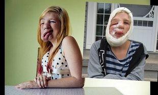 Καινούρια ζωή για την έφηβη που είχε όγκο στο μισό πρόσωπό της (φωτογραφίες+βίντεο)