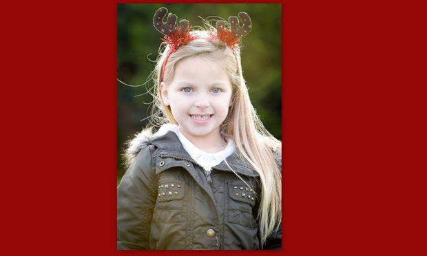 Κοριτσάκι γεννήθηκε με κόκκινη μυτούλα, όπως ο Ρούντολφ το ελαφάκι! (φωτογραφία)