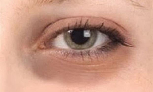 Πείτε αντίο στους μαύρους κύκλους και στις σακούλες κάτω από τα μάτια με 6 μικρά μυστικά!