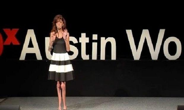 Ένα βίντεο που πρέπει όλοι να δούμε-Η ασχημότερη γυναίκα του κόσμου ορίζει τι σημαίνει ομορφιά