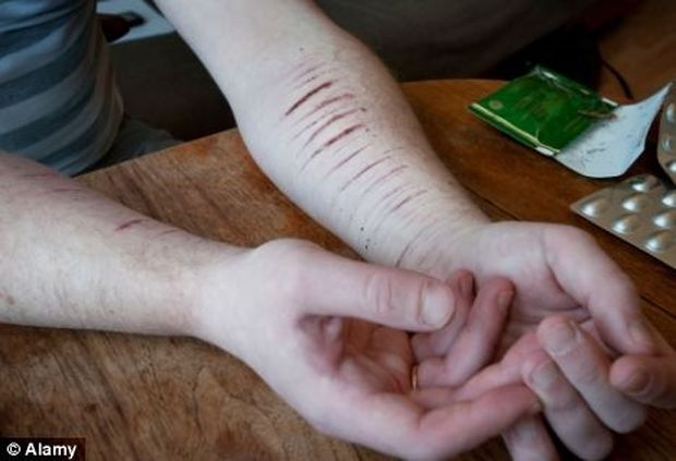 Η νέα τραγική μόδα των εφήβων: Τους αρέσει να αυτοτραυματίζονται! (εικόνες)