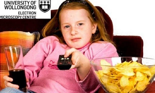 Έρευνα: Η έλλειψη ύπνου κι η πολύωρη έκθεση στην τηλεόραση ευθύνονται για την παιδική παχυσαρκία