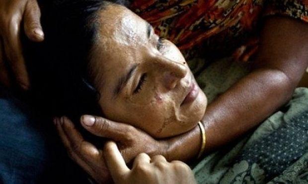 Η «ομορφιά» και η ιστορία μιας ουλής. Φωτογραφίες γυναικών που τους επιτέθηκαν με βιτριόλι