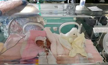 Ένα πρόωρο μωρό γίνεται «μικρό θαύμα» και μάθημα ζωής για όλους (εικόνες)
