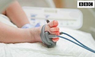 Η πιο επικίνδυνη ημέρα στη ζωή ενός πρόωρου μωρού
