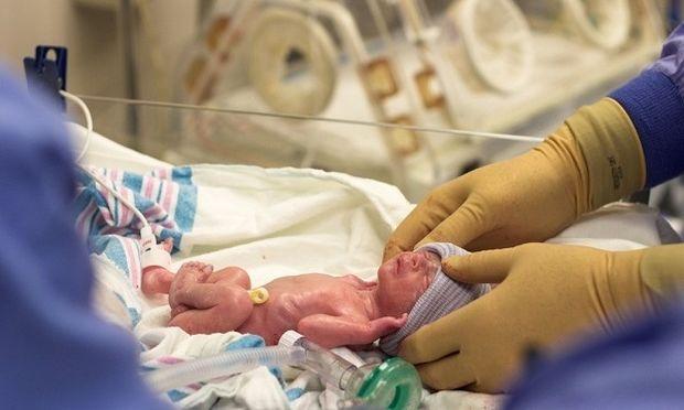 SOS για τις παχύσαρκες γυναίκες. Τα μωρά τους έρχονται στον κόσμο πριν συμπληρωθεί η 28η εβδομάδα κύησης