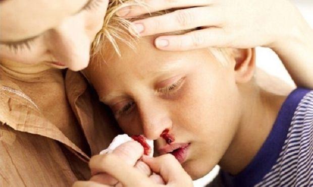 «Σπάει δόντι, χτυπάει το κεφάλι, τρέχει αίμα η μύτη»! Τι πρέπει να κάνετε σε περίπτωση που το παιδί σας τραυματιστεί.