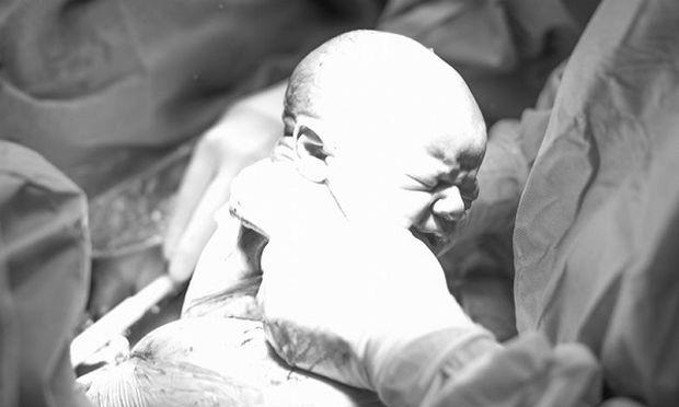 Καισαρική: Δείτε τη γέννα καρέ καρέ μέσα από ένα εκπληκτικό φωτογραφικό άλμπουμ