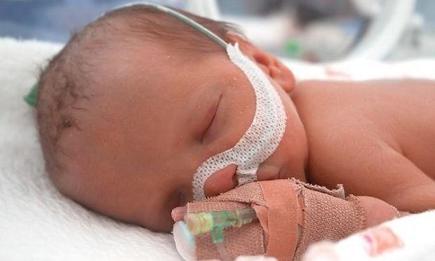 Πρόωρα μωρά: Όλα όσα πρέπει να γνωρίζετε, από τη μέρα της γέννας τους μέχρι και τη μέρα εξόδου τους!