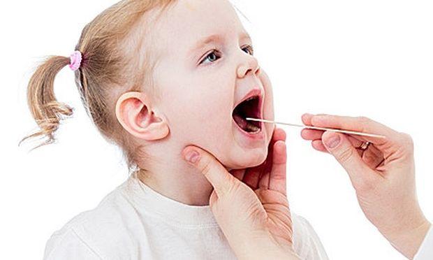 Αφθώδης στοματίτιδα στα παιδιά-Όλα όσα πρέπει να γνωρίζουμε