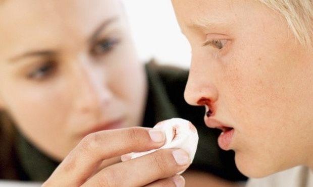 Τι είναι η ρινορραγία και πώς θα την αντιμετωπίσετε. (αναλυτικές οδηγίες)
