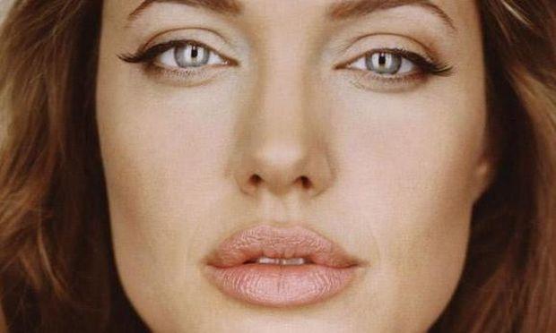 Απέκτησε με 2 κινήσεις τα χείλη της Αντζελίνα Τζολί και εντυπωσίασε στο ρεβεγιόν!