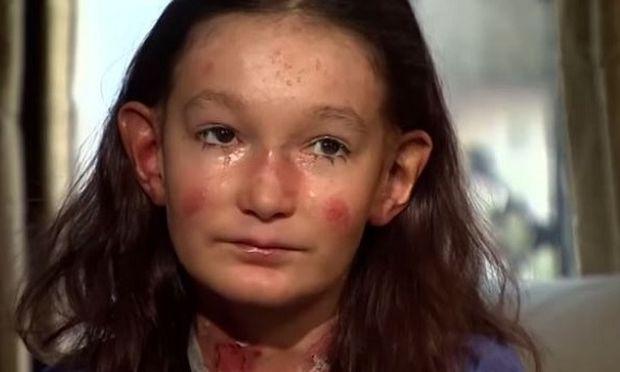 Δείτε από ποια σπάνια ασθένεια υποφέρει αυτό το 12χρονο κορίτσι! (βίντεο)