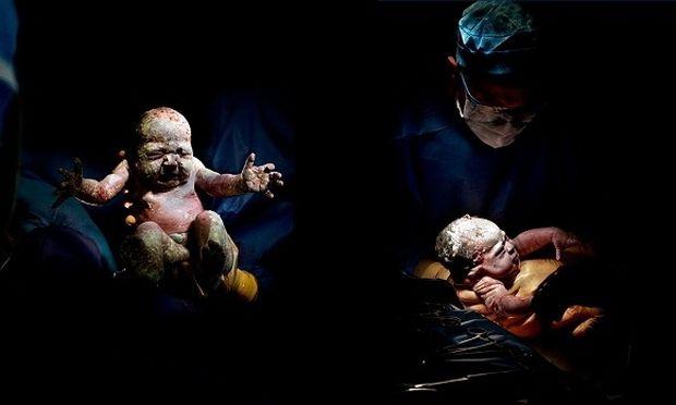 Συγκλονιστικό: Μοναδικά πορτρέτα μωρών λίγα δευτερόλεπτα μετά τη γέννησή τους (εικόνες)