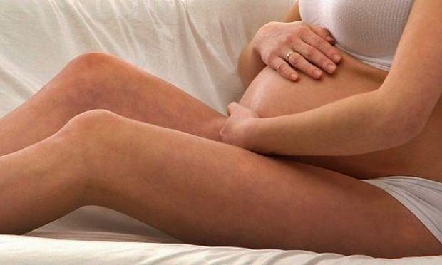 Κιρσοί στην εγκυμοσύνη; Αντιμετωπίστε τους!