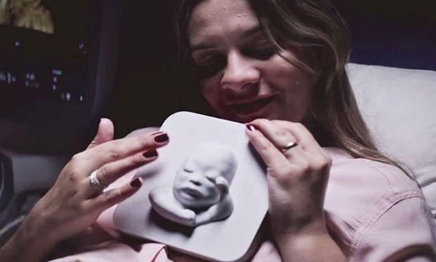 Μοναδικό: Δείτε πώς μία τυφλή γυναίκα «ένιωσε» το αγέννητο μωρό της! (βίντεο)