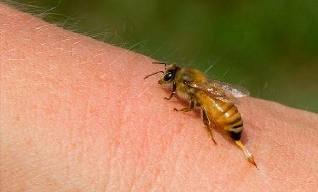 «Μέλισσα τσίμπησε το παιδί μου!» Δείτε τι πρέπει να κάνετε