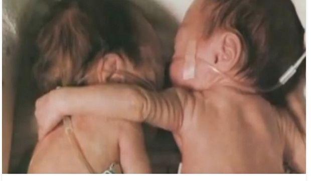 Αγκάλιασε τη δίδυμη αδελφούλα της κι η συνέχεια είναι σοκαριστική