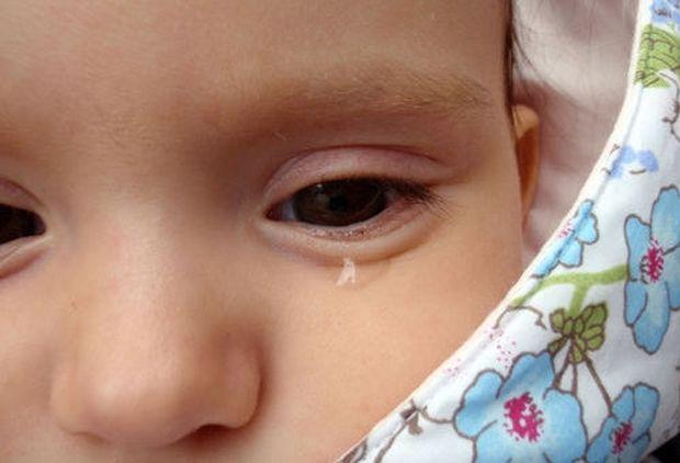 Σοκαριστικό: Mωρό Κύκλωπας γεννήθηκε στην Αίγυπτο